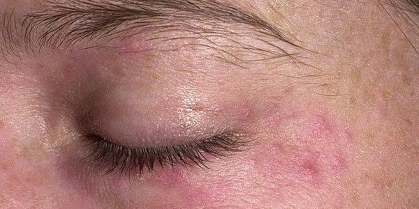 Какие последствия могут быть при псориазе на глазах и как его быстро вылечить?