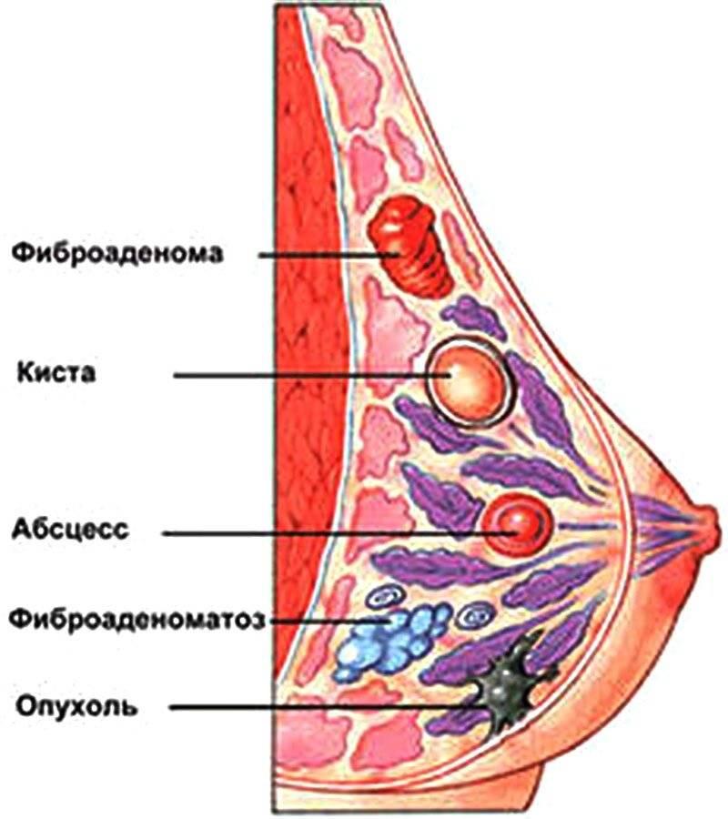 Болит киста в груди