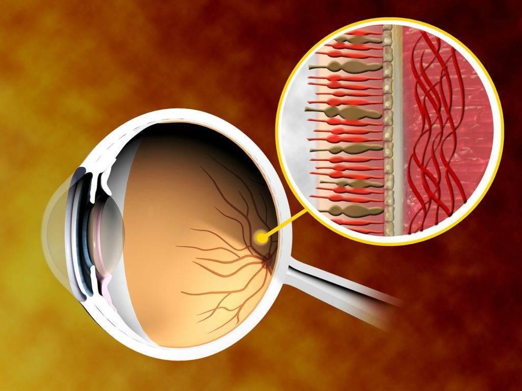 сетчатка глаза лечение народными средствами