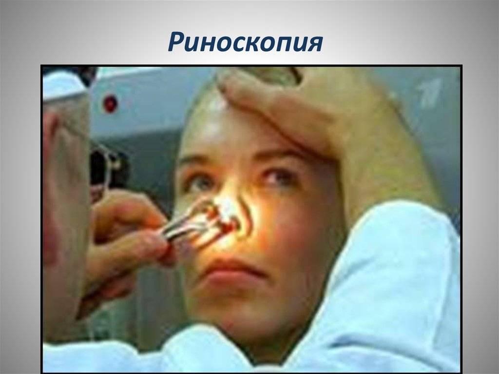 Риноскопия: передняя, средняя и задняя, при аденоидах. когда необходима процедура?