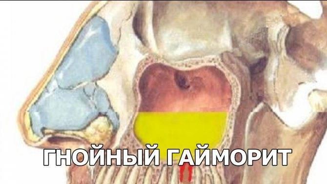 Способы эффективного лечения вирусного гайморита: описание