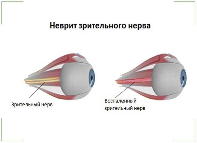 ретробульбарный неврит зрительного нерва лечение