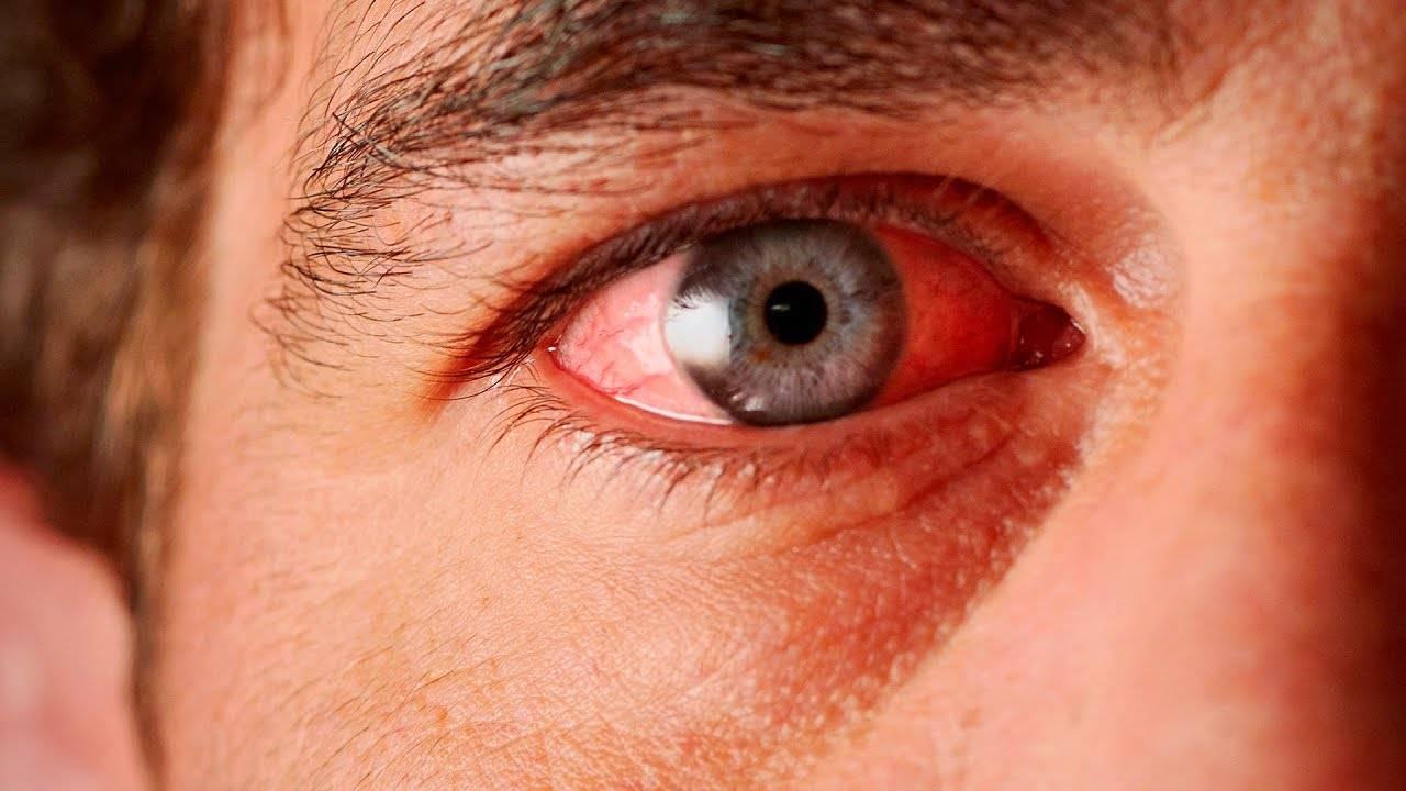 после сварки болят глаза чем лечить народные средства