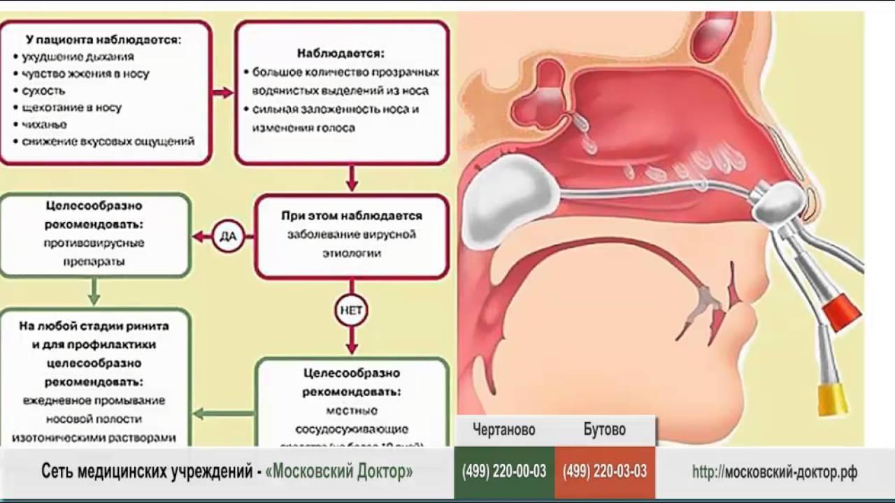 Медикаментозный вазомоторный ринит | советы доктора