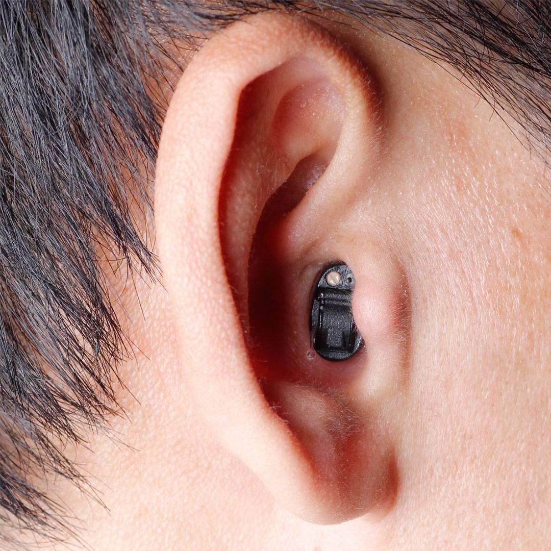 Как получить компенсацию заслуховой аппарат