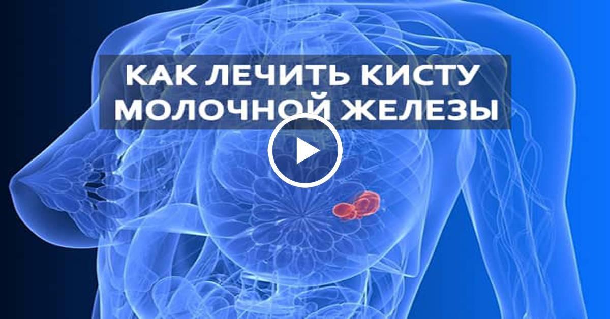 Лечение кисты молочной железы травами, народными методами или препаратами: отзывы и рецепты