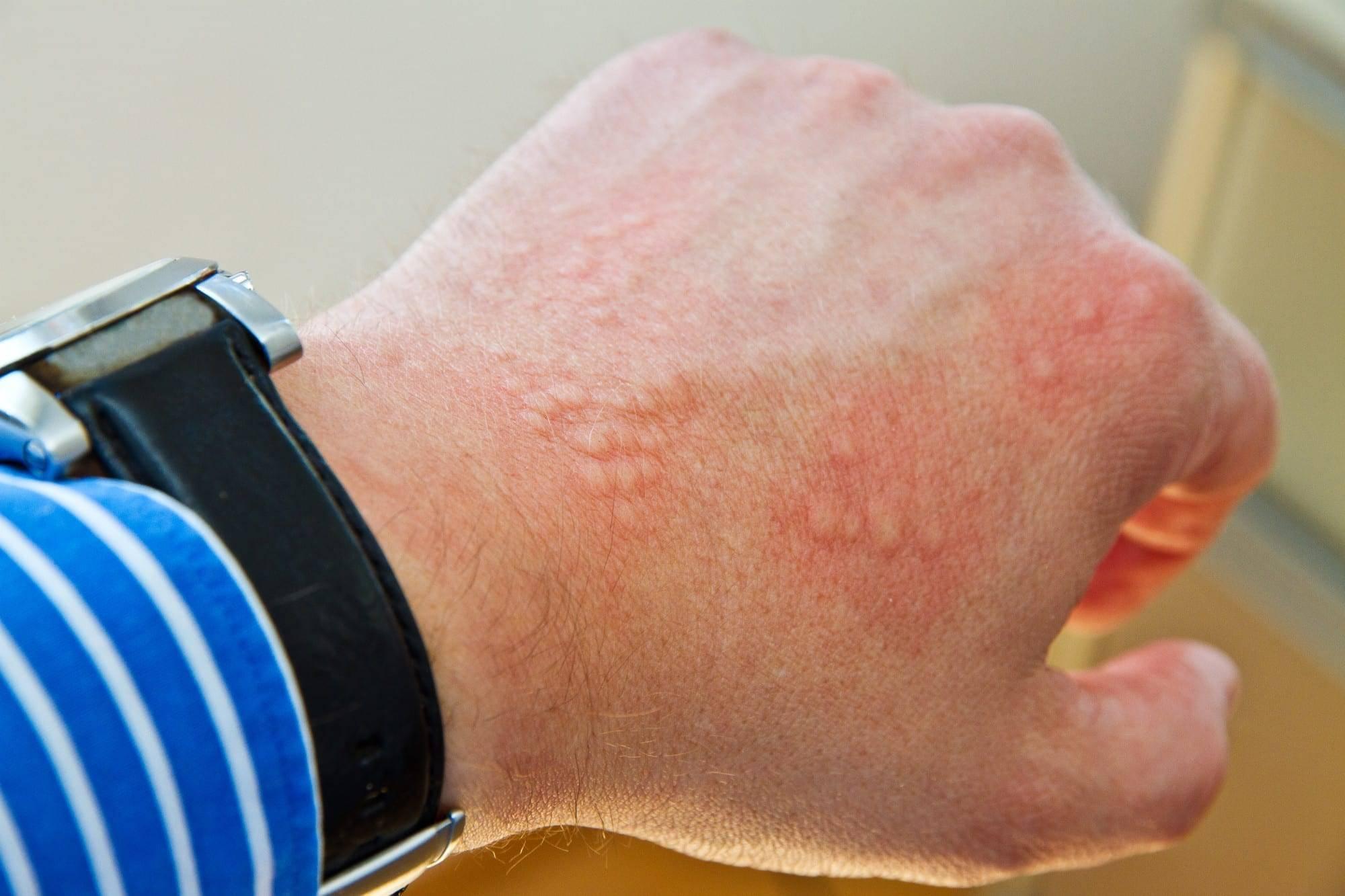 Лечение перианального дерматита