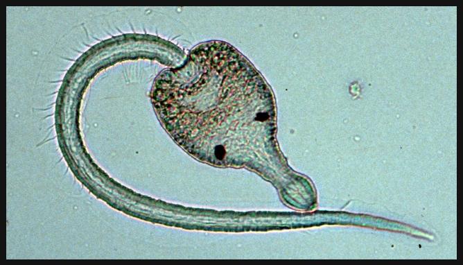 Причины зуда купальщиков: симптоматика, лечение, фото. шистосоматидный или церкариальный дерматит («зуд купальщика») — кожное паразитарное заболевание