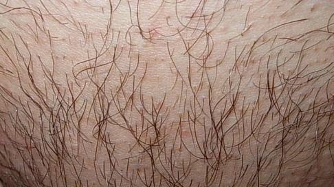 Загадка медицины: особенности протекания псориаза у женщин