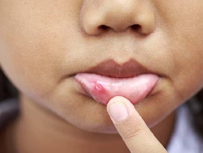 герпес на внутренней стороне губы