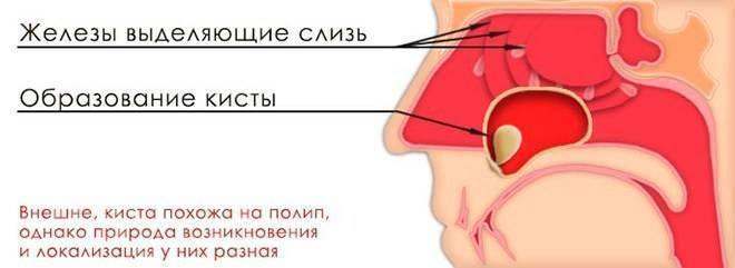 Симптомы и лечение кист в правой/левой верхнечелюстной пазухах