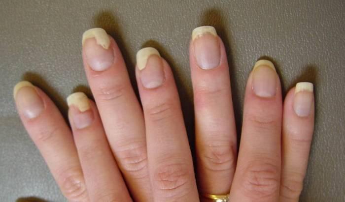 Псориаз ногтей: эффективное лечение в домашних условиях