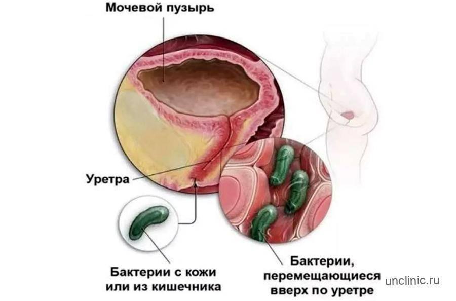 Лечение цистита с кровянистыми выделениями у женщин
