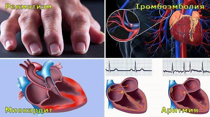 почему ангина дает осложнения на сердце