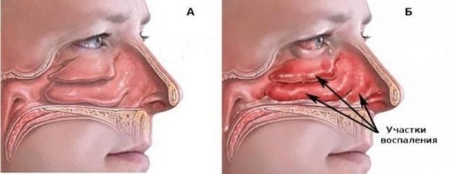 Причины и лечение отека слизистой носа