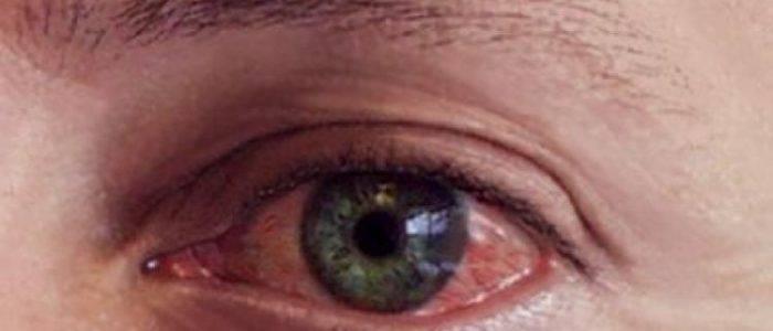 Эффективное лечение герпеса на глазу, причины его возникновения