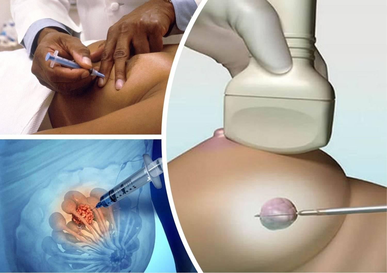 кровь в кисте молочной железы при пункции