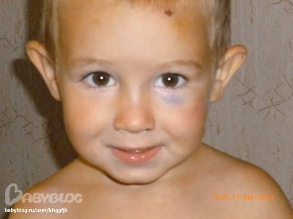 Каковы первые симптомы перелома носа у ребенка?