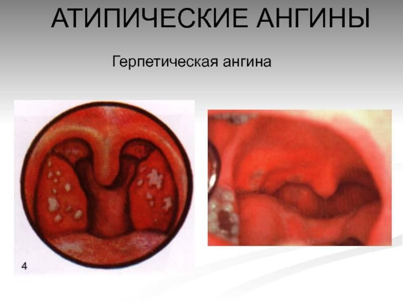 герпесная ангина у детей лечение