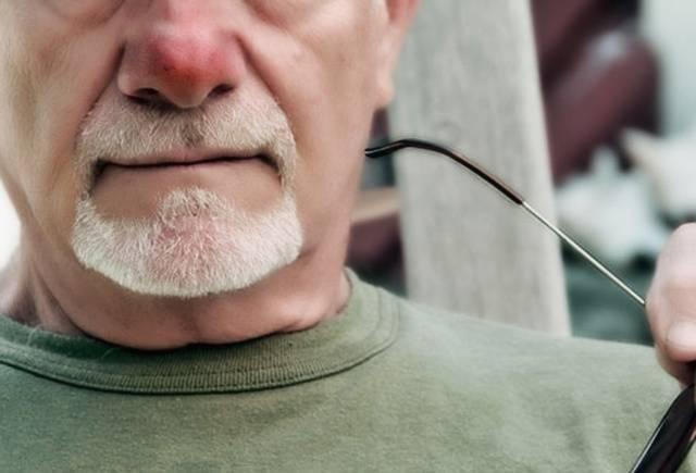 гиперемия носа