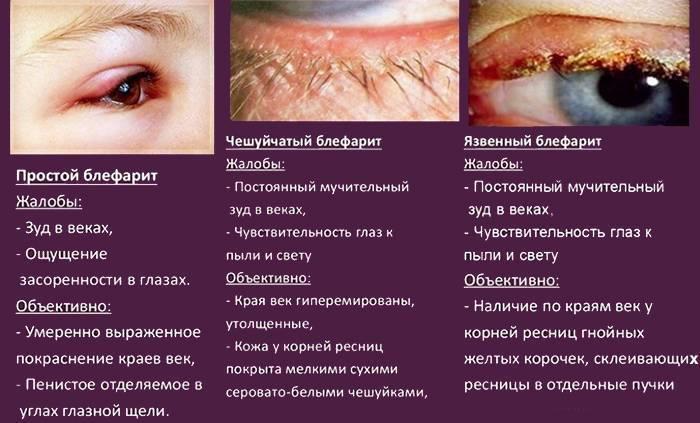 блефарит симптомы