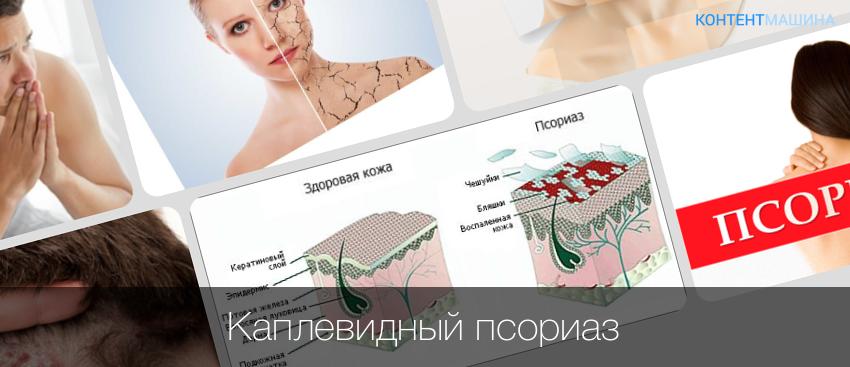 Каплевидный псориаз: признаки, особенности, схемы лечения