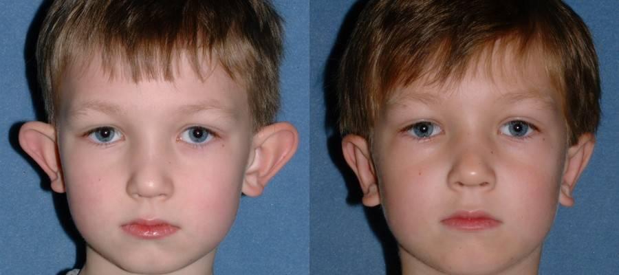 Оттопыренные уши как избавиться без операции. лопоухость — как избавиться от врожденного недостатка