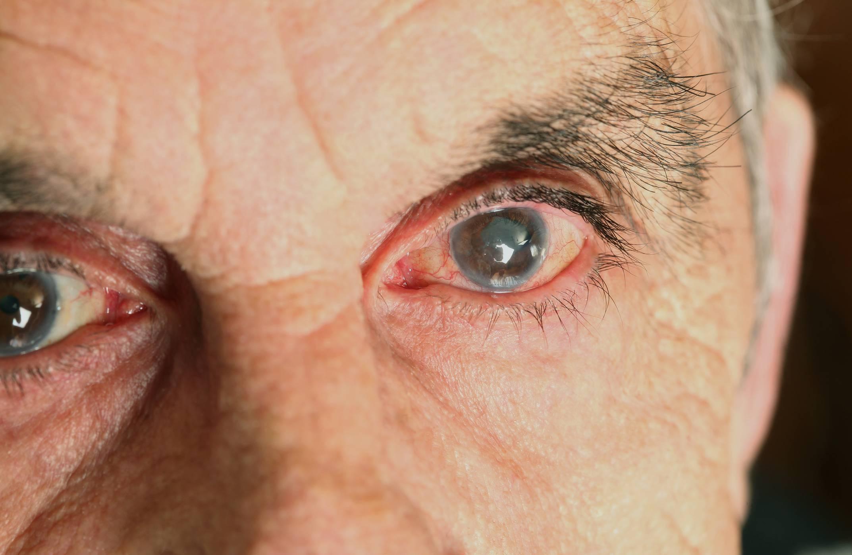 Почему возникает, как проявляется и купируется приступ глаукомы?
