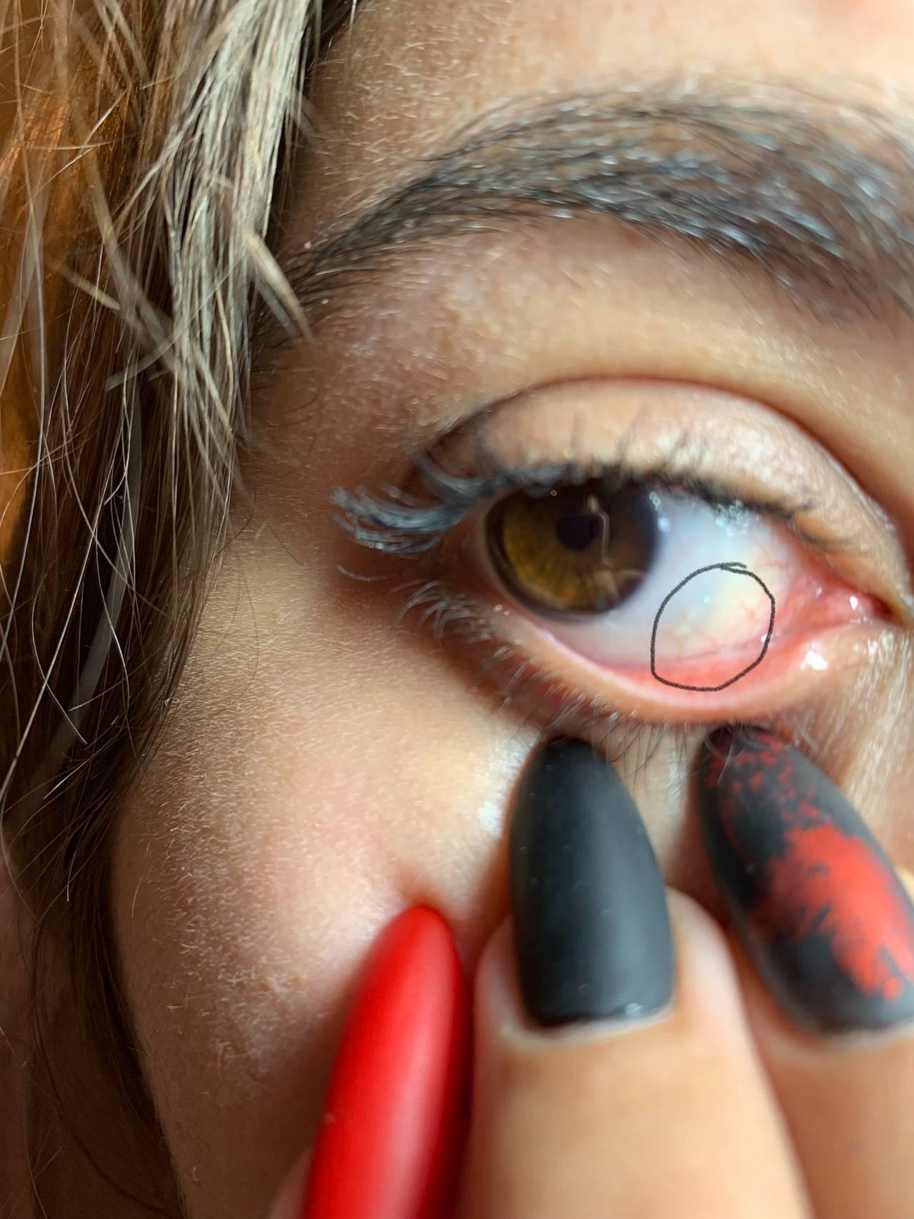 Доброкачественное новообразование, или нарост на глазном яблоке