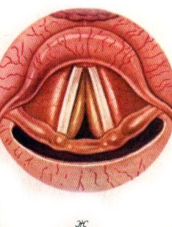 Ларингит (острый) - симптомы болезни, профилактика и лечение ларингита (острого), причины заболевания и его диагностика на eurolab