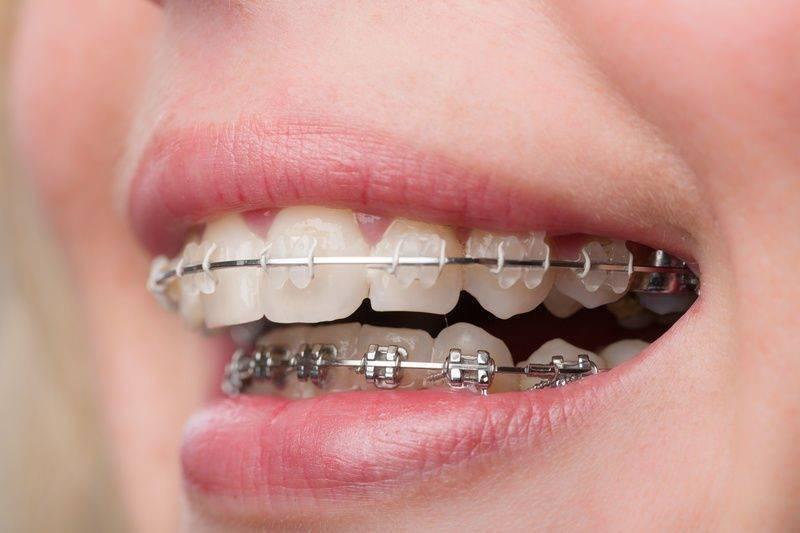 Ортодонтические методы лечения