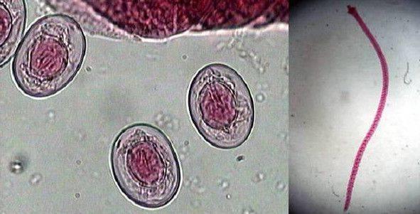 Анализ на гименолепидоз как сдавать — parazit24