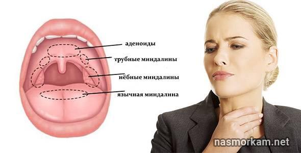 Воспаление миндалин — причины, симптомы, принципы лечения