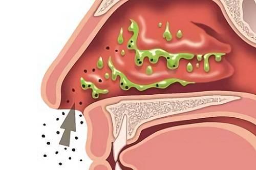 Как восстановить слизистую носа?