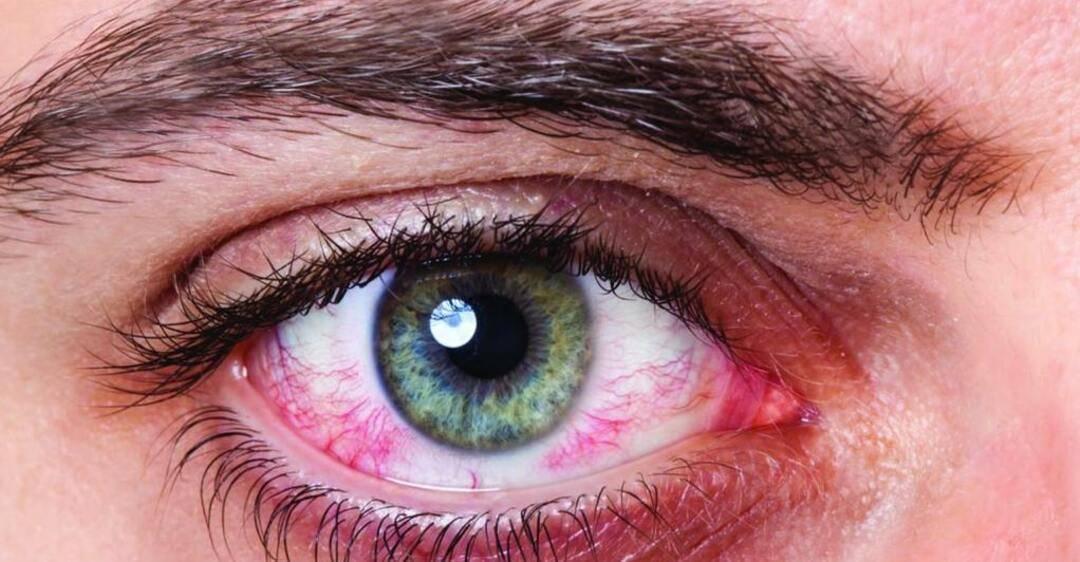 От линз краснеют и болят глаза