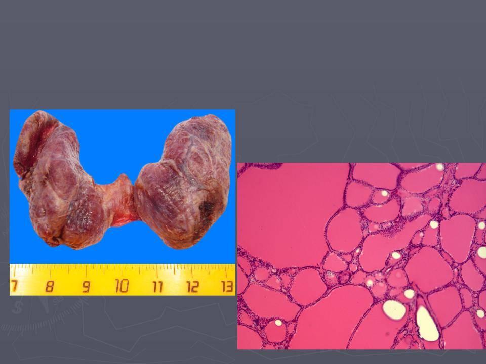 Причины, симптомы, степени и лечение многоузлового зоба