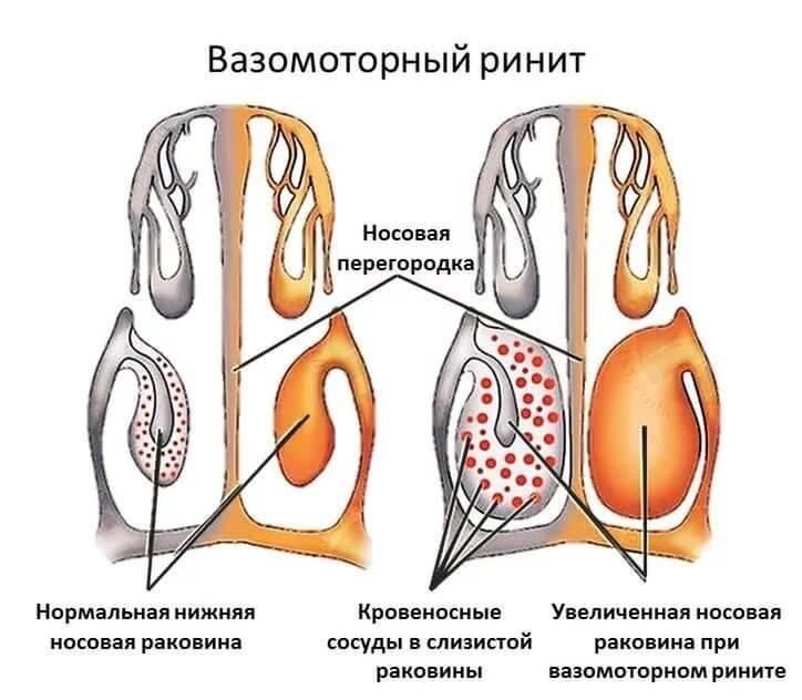 хронический вазомоторный ринит симптомы