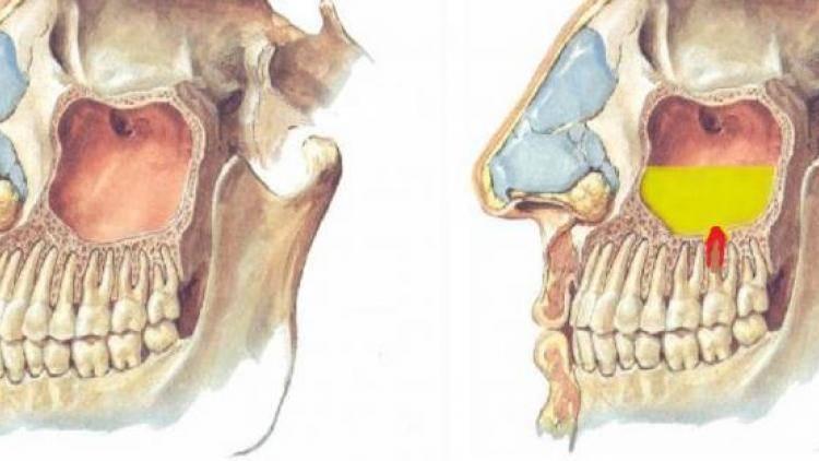 Киста гайморовой пазухи. симптомы кисты гайморовой пазухи