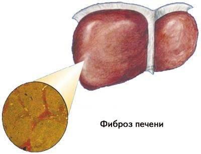 Чем отличается фиброз от цирроза печени?