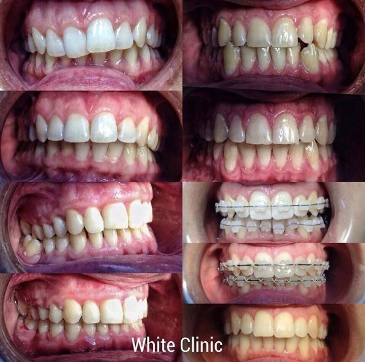 кривые нижние зубы как исправить