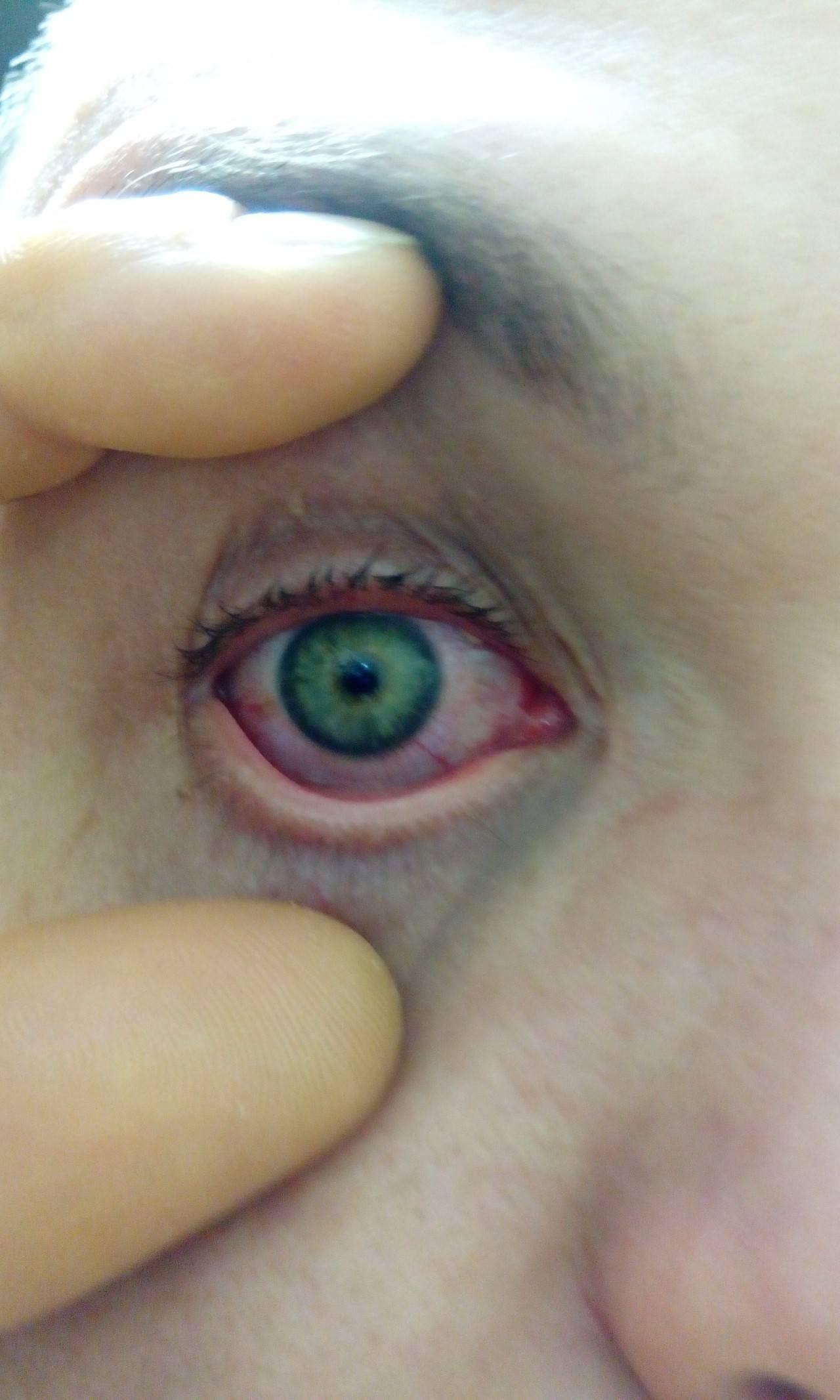 Из глаз выделяется желтоватая слизь что делать. выделения в уголках глаз у ребенка и взрослого: причины, чем лечить