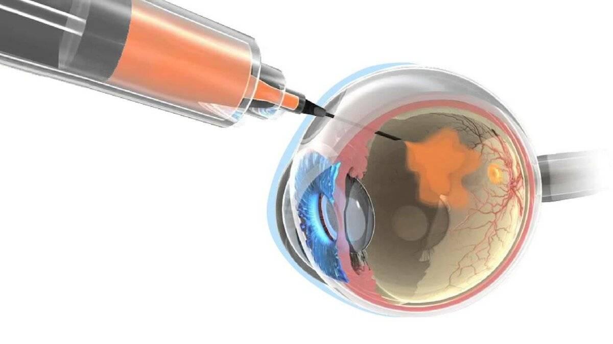 Патология макулодистрофия сетчатки глаза — лечение и причины появления