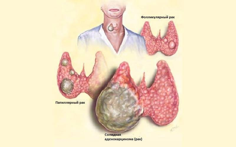 симптомы рака щитовидной