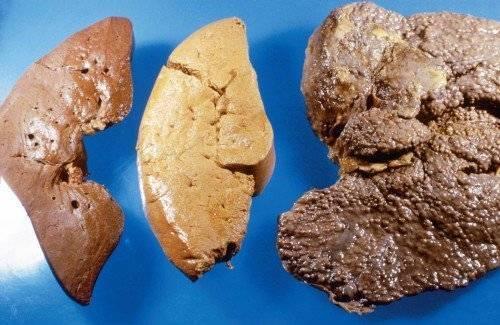 Что являет собой недуг – кардиальный цирроз печени