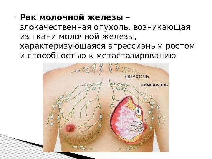 Народные средства от рака молочной железы: надежные рецепты