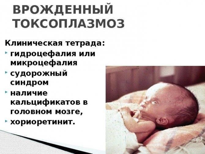 Токсоплазмоз при беременности – что это? токсоплазмоз – симптомы у беременных женщин, лечение, последствия для ребенка, профилактика