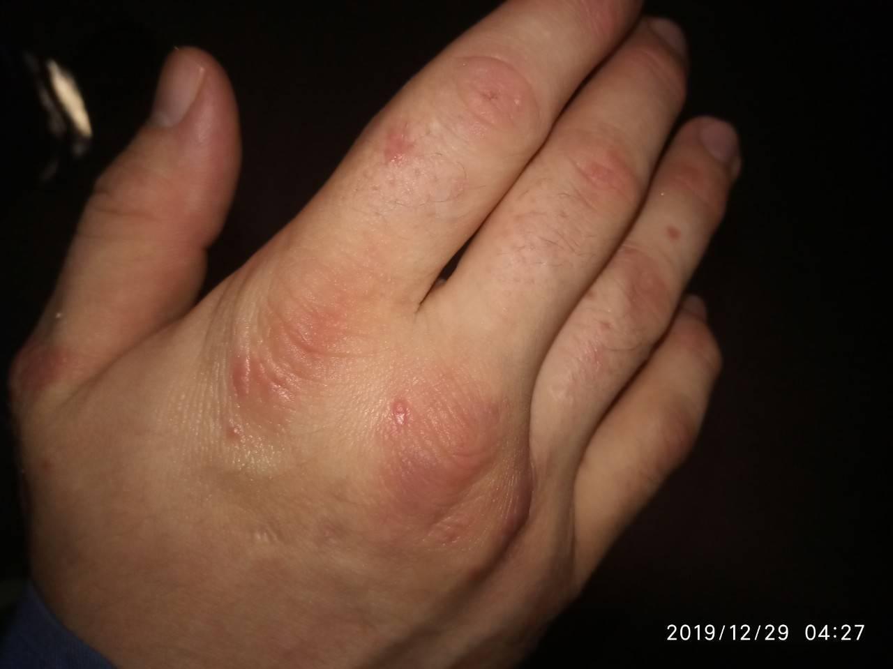 как вылечить псориаз на руках
