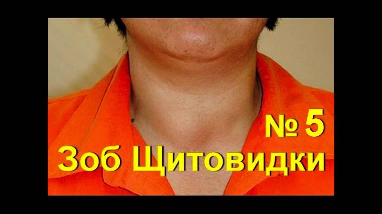 Лечение щитовидной железы у женщин народными средствами