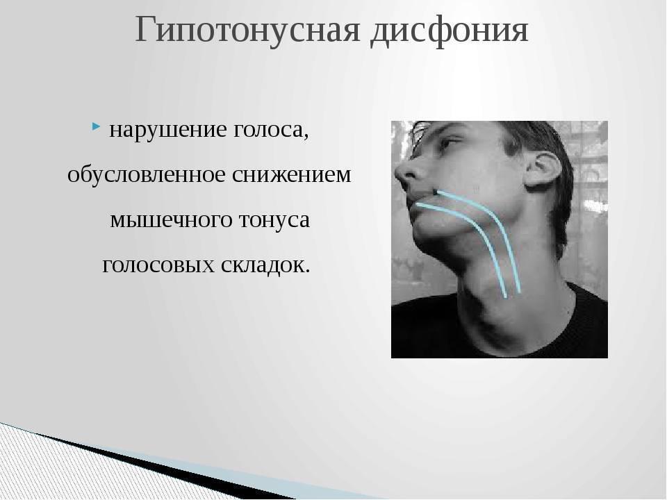 гипотонусная дисфония лечение