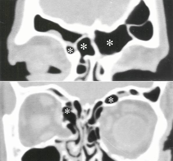 Что такое гипоплазия лобных пазух